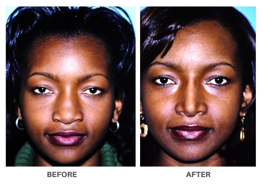 black woman before and after rhinoplasty