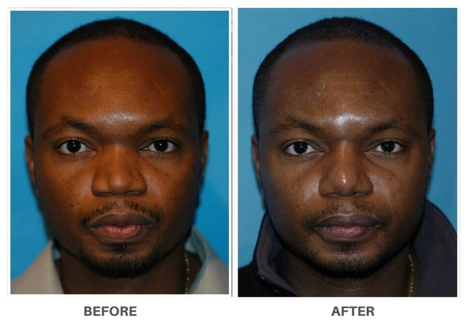 black man before and after rhinoplasty