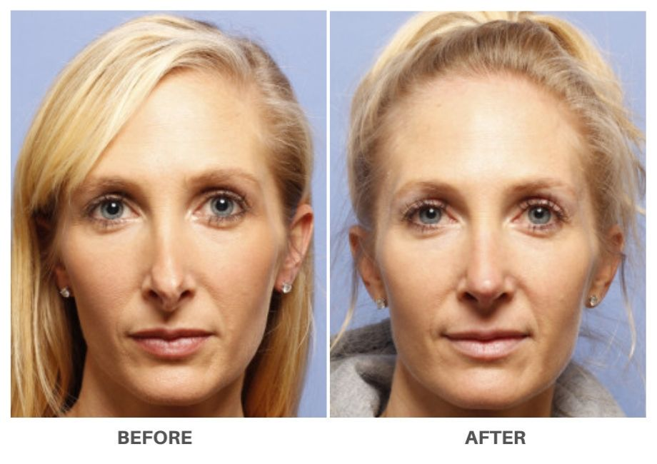 middle aged blonde woman before and after rhinoplasty